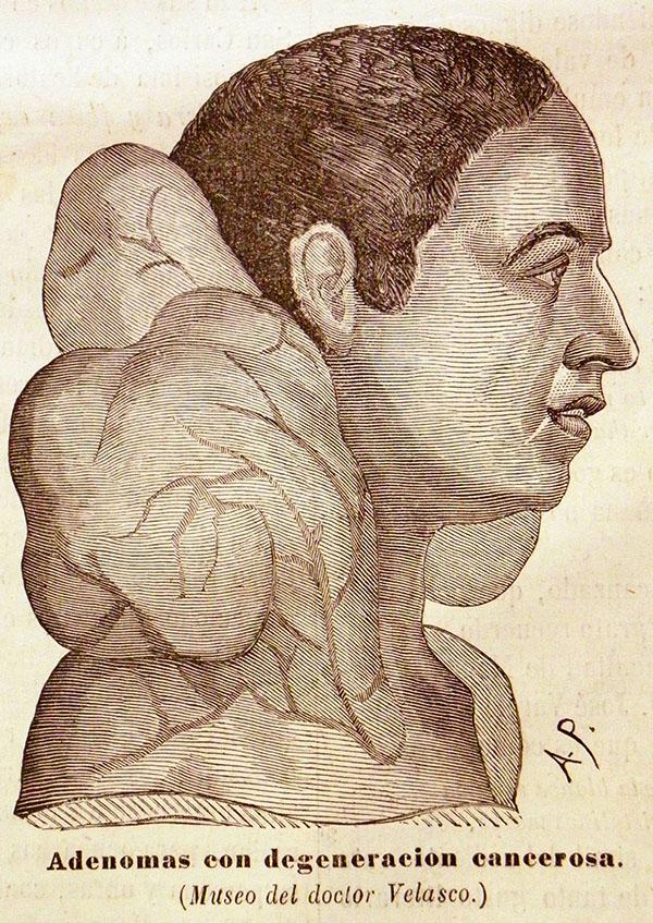"""Modelo de busto con """"adenomas con degeneración cancerosa"""", perteneciente al Museo Anatómico-Patológico de Atocha 90 (El Anfiteatro Anatómico Español, nº 4, 15 de marzo de 1873, p. 48)"""