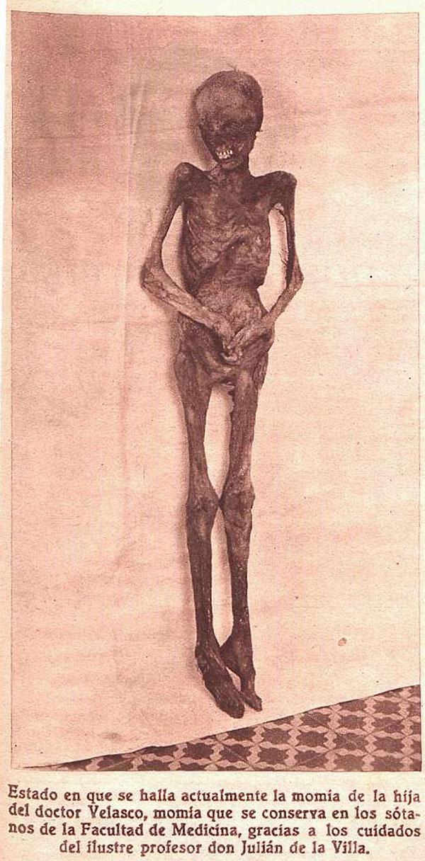 Presunta momia de la hija del doctor Velasco, conservada inicialmente en el museo de Atocha 90 y luego trasladada a la Facultad de Medicina de Madrid. En realidad, se trata de la momia de la hija del médico Manuel Tarín, donada a Velasco en 1873 (Crónica, 7 de julio de 1935)